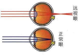 儿童眼睛散光弱视_中医治疗远视 - 治疗儿童弱视_治疗儿童斜视_治疗儿童散光_治疗 ...