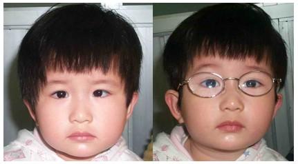 治疗儿童斜视的非手术治疗方法有哪些